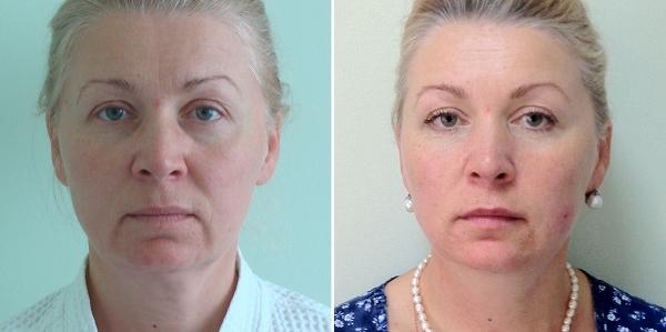 До и после подтяжки лица у Пшонкиной