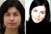 Пациентка В. Стайсупова до и после удаления комков Биша