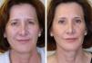 До и после биоармирования