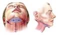 Техника выполнения хирургической подтяжки шеи