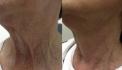 До и после подтяжки шеи