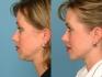 До и после хирургической липосакции подбородка