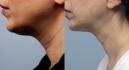 До и после липосакции подбородка