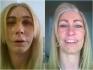Многодетная мать 12 лет копила себе на подтяжку лица