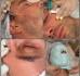 На днях Михаил Терехин поделился видео с проведением ему омолаживающих процедур
