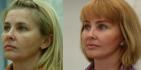 Результат омоложения лица у Валерия Якимца