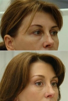 endoskopija lba