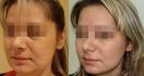 До и после софтлифтинга. Хирург - Вадим Баков