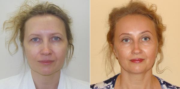 Пациентка Светланы Пшонкиной до и после эндоскопической подтяжки