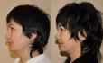 «До» и «после» подтяжки лица у Эдуарда Шихирмана