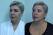 Результат подтяжки нитями Силуэт Лифт, хирург – Светлана Пшонкина