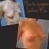 Коррекция тубулярной груди Увеличение с периареолярной подтяжкой