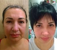 do i posle facelifting