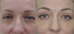 Трансконъюктивальный лазерный блефаролифтинг от Frau Klinik