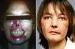 Изабель Динуар до и после пересадки лица