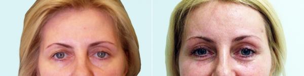 До и после эндоскопической подтяжки лба
