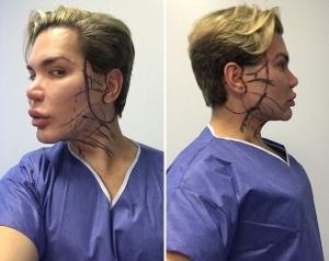 Родриго Алвес, известный всему миру как «Живой Кен», сделал очередную пластику лица