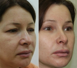 Фото до и после эндоскопической подтяжки лица у Александра Гуляева