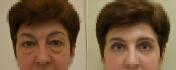 Ольга Ованесова. Пациентка до и после блефаропластики