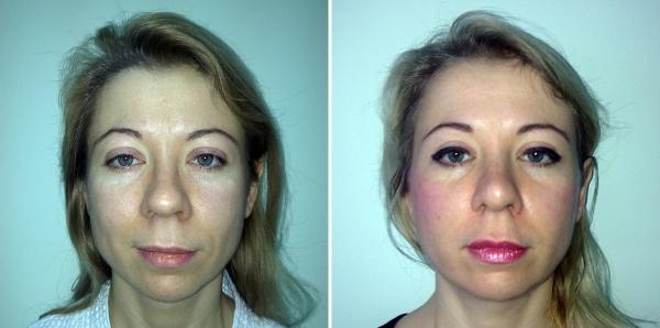 Пациентка Светланы Пшонкиной до и после подтяжки Силуэт Лифт