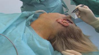 Пластическая хирургия против птоза