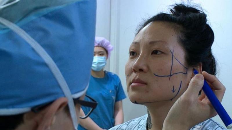 Пластические хирурги в Южной Корее предпочитают малоинвазивное оборудование