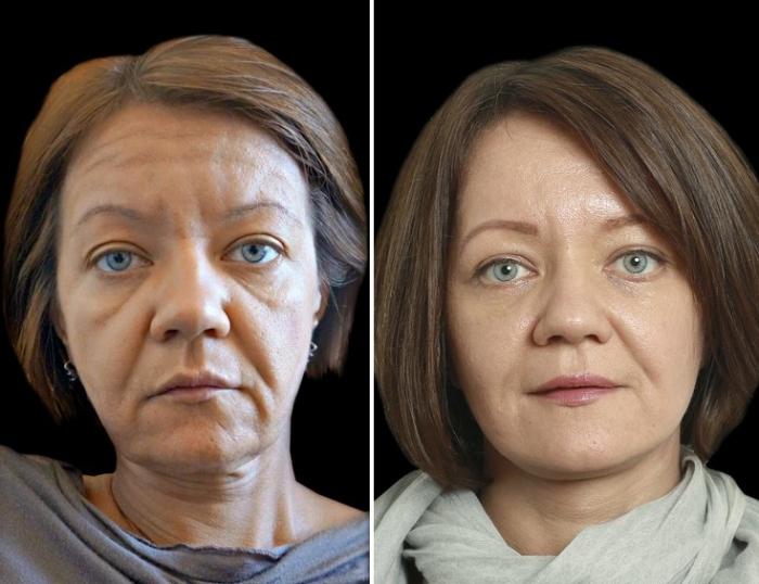 Александр Тимошенко до и после подтяжки лица
