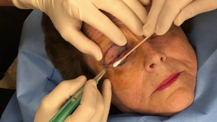 Блефаропластика под местной анестезией
