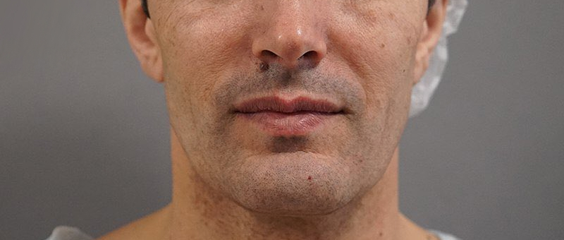 Мультитехнологичная пластика лица