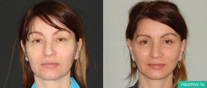 Фото до и после спейслифтинга у доктора Владимира Наумова