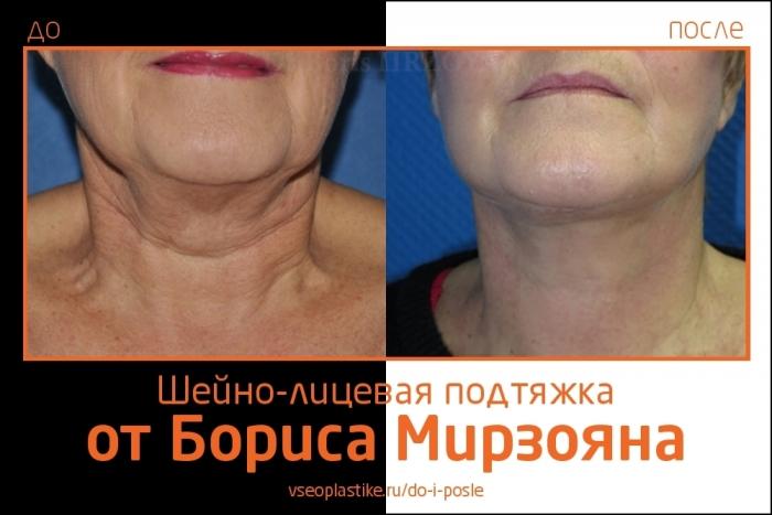 подтяжка лица и шеи Борис Мирзоян