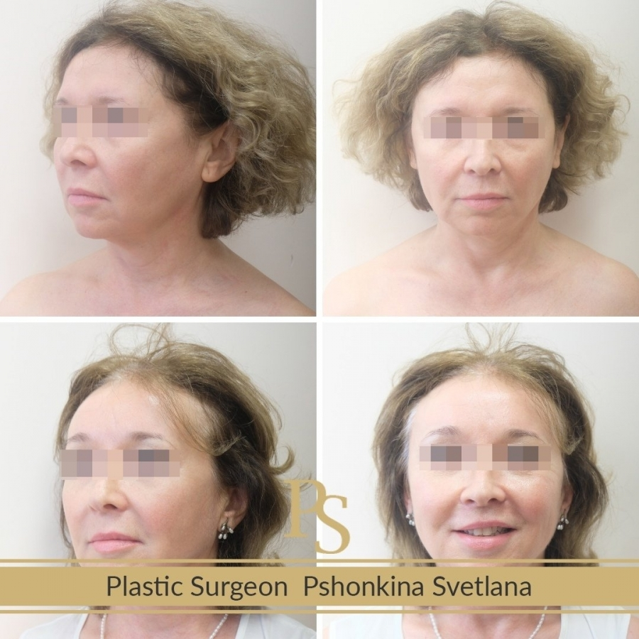 Фотографии до и после Визаж Лифта у доктора Пшонкиной С.Ю.