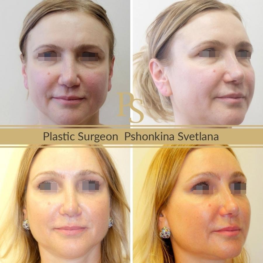Фотографии пациентки до и после Визаж Лифта у доктора Пшонкиной С.Ю.