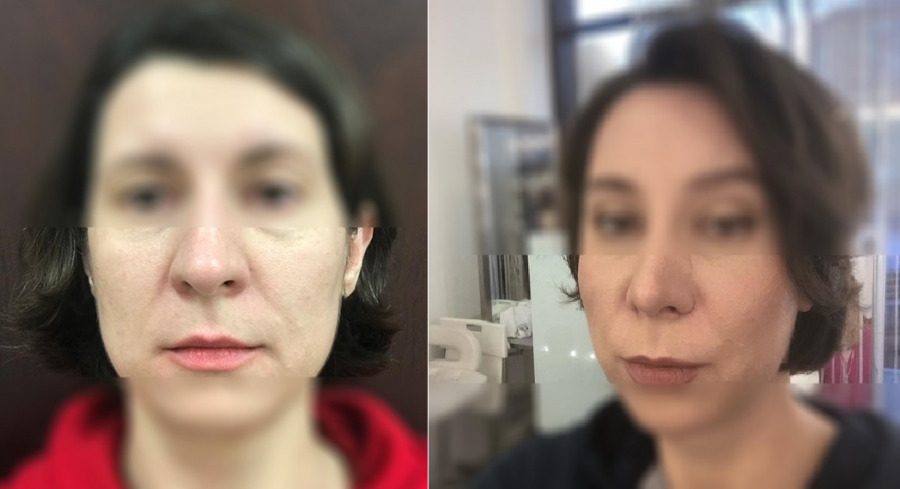 Снимки до и после Визаж Лифта у доктора Пшонкиной С.Ю.