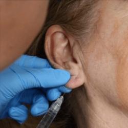 Контурная пластика мочек ушей