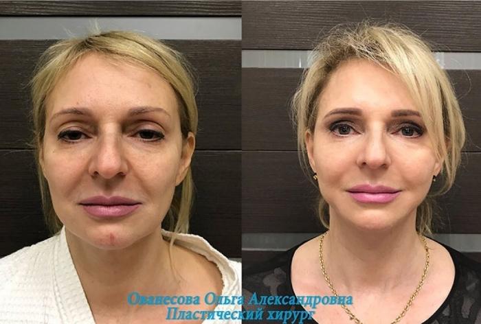 Пациентка доктора Ованесовой до и после подтяжка лица