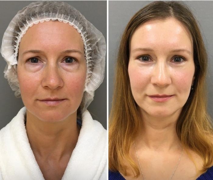 Пациентка доктора Марины Четвериковой до и после подтяжки век