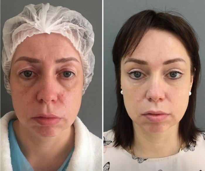 Пациентка доктора Марины Четвериковой до и после комплексной операции по омоложению лица